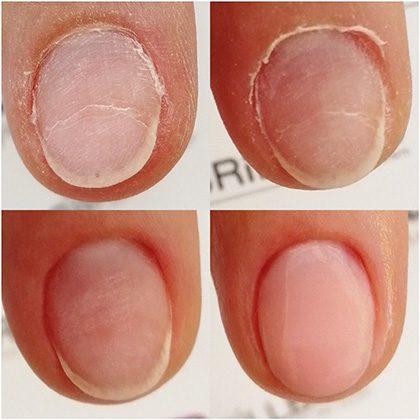 Techniques ongle